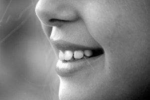 smile-dental-image