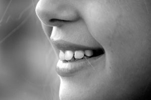 smile-dental-image